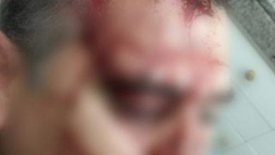 Photo of BERAZATEGUI:AGREDEN A UN POLICÍA